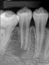 Pre -Op Radiograph showing apical infection and open apex on tooth number 29