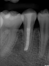 Post -Op Radiograph after apexification of tooth number 29