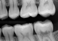 Bitewing radiographs of tooth number 18 showing external resorption