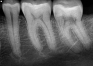 PA Radiograph of tooth number 18 showing external root resorption