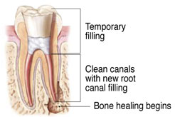 Endodontic Retreatment at Bexter M. Yang, DDS, MS, Cupertino, CA